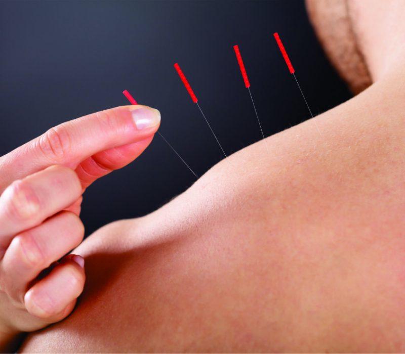 acupuntura em campinas dr leo