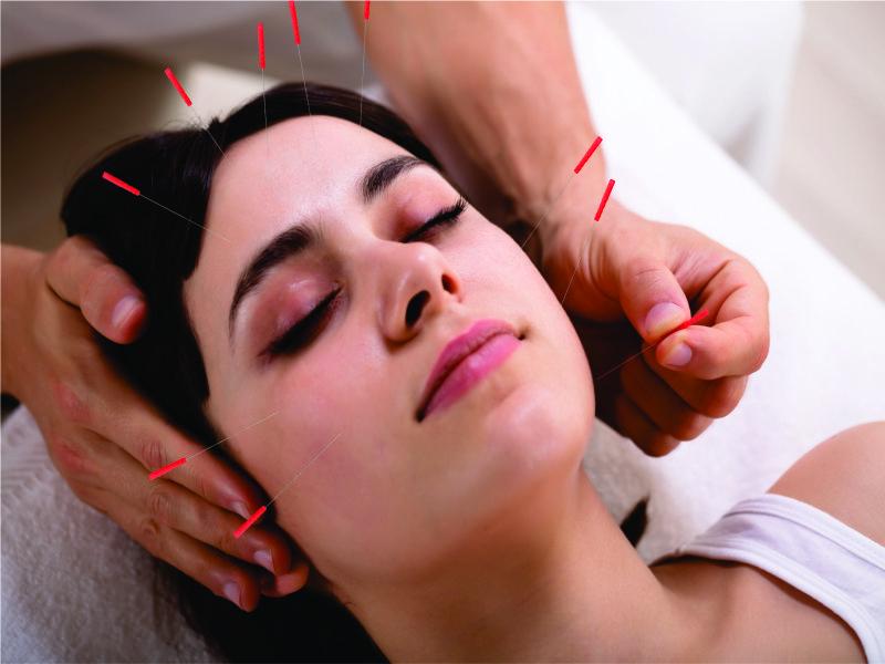 acupuntura em campinas