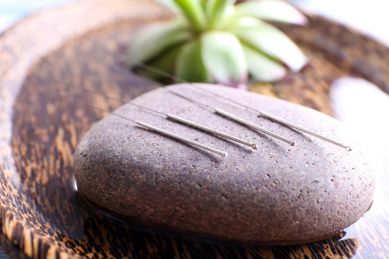 drleo acupuntura amparo